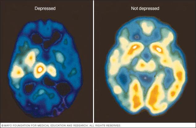depression-brain-disease